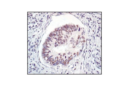 Immunohistochemical analysis of paraffin-embedded human colon carcinoma, showing nuclear localization, using Mre11 Antibody.