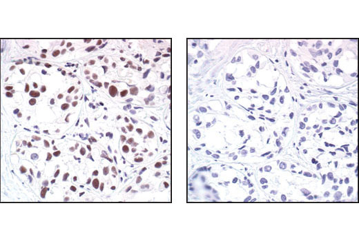 Immunohistochemical analysis of paraffin-embedded human breast carcinoma, using Mre11 Antibody in the presence of control peptide (left) or Mre11 Blocking Peptide #1035 (right).