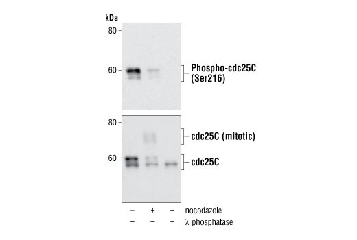 Western Blot analysis of HT29 cells, untreated, nocodazole-treated, and lambda phosphotase-treated, using Phospho-cdc25C (Ser216) antibody (upper), and cdc25C (5H9) Rabbit Mab, #4688, (lower).