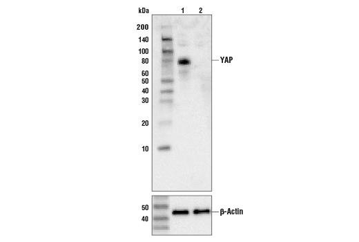 Polyclonal Antibody Immunoprecipitation Positive Regulation of Organ Growth
