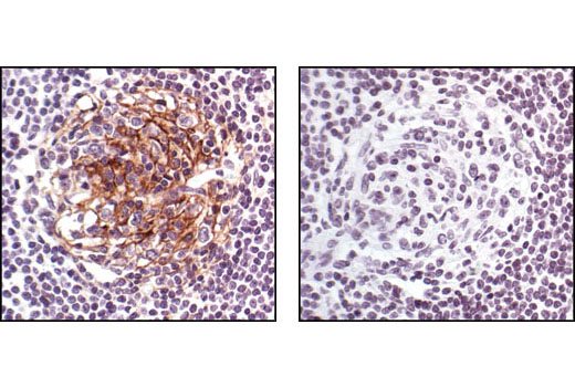 Immunohistochemical analysis of paraffin-embedded human lymph node using CD54/ICAM-1 Antibody in the presence of control peptide (left) or antigen specific peptide (right).