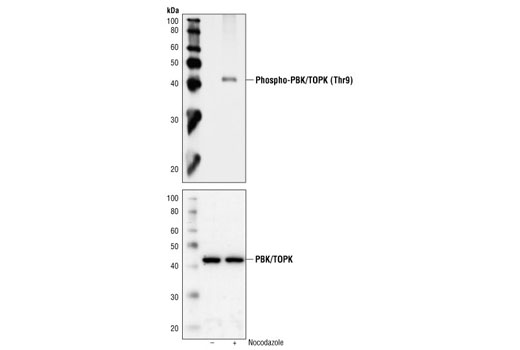 Polyclonal Antibody - Phospho-PBK/TOPK (Thr9) Antibody - Western Blotting, UniProt ID Q96KB5, Entrez ID 55872 #4941 - Cell Cycle / Checkpoint Control