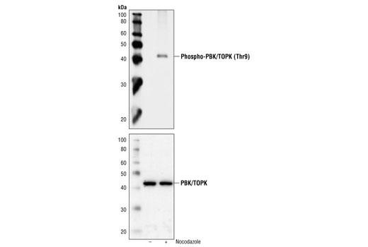 Polyclonal Antibody - Phospho-PBK/TOPK (Thr9) Antibody - Western Blotting, UniProt ID Q96KB5, Entrez ID 55872 #4941, Pbk