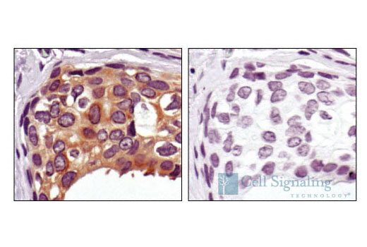 Immunohistochemical analysis of paraffin-embedded human breast carcinoma, using PBK/TOPK Antibody preincubated with an irrelevant control peptide (left) or antigen specific peptide (right).