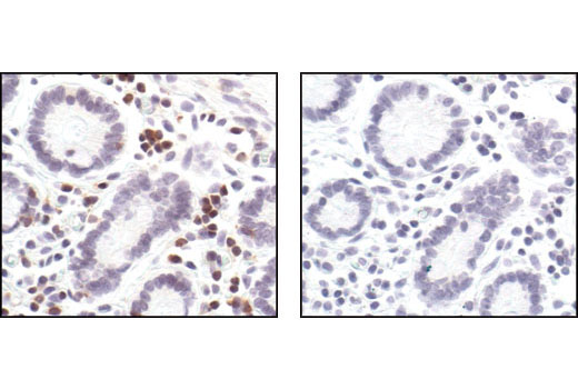 Immunohistochemical analysis of paraffin-embedded human colon using SLP-76 Antibody in the presence of control peptide (left) or antigen-specific peptide (right).