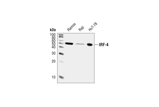 Western blot analysis of extracts from Ramos, Raji, and HuT-78 cells, using IRF-4 Antibody.