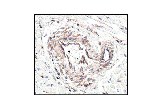 Immunohistochemical analysis of paraffin-embedded human heart using beta-Actin (13E5) Rabbit mAb. Note the lack of staining of cardiac actin.