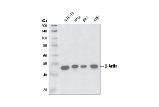 Western blot analysis of cell extracts from various cell lines using beta-Actin (13E5) Rabbit mAb.