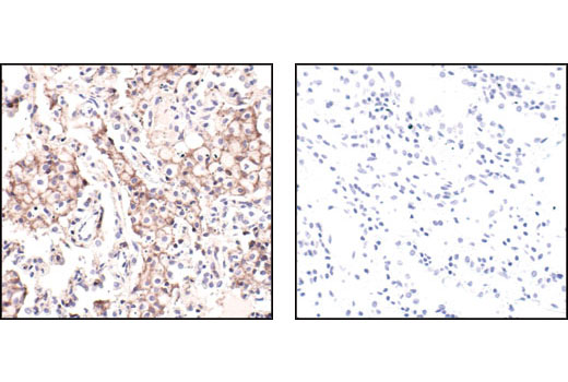 Immunohistochemical analysis of paraffin-embedded human lung carcinoma using beta-Actin (13E5) Rabbit mAb in the presence of control peptide (left) or beta-Actin Blocking Peptide #1025 (right).