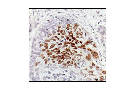 Immunohistochemical analysis of paraffin-embedded human squamous cell carcinoma of the esophagus, showing nuclear localization, using Phospho-p63 (Ser160/162) Antibody.