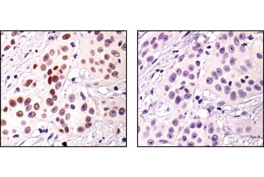 Immunohistochemical analysis of paraffin-embedded human squamous cell carcinoma, using Phospho-p63 (Ser160/162) Antibody in the presence of control peptide (left) or antigen-specific peptide (right).