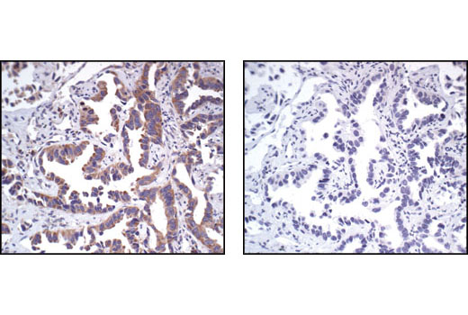 Immunohistochemical analysis of paraffin-embedded human lung carcinoma, using PABP1 Antibody in the presence of control peptide (left) or antigen-specific peptide (right).