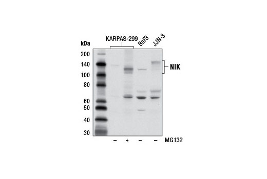 Image 5: NF-κB Non-Canonical Pathway Antibody Sampler Kit