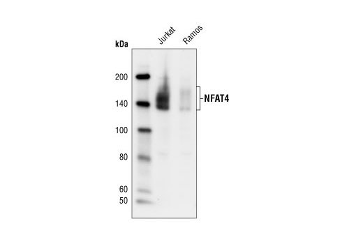 Polyclonal Antibody - NFAT4 Antibody - Immunoprecipitation, Western Blotting, UniProt ID Q12968, Entrez ID 4775 #4998, Lymphocyte Signaling