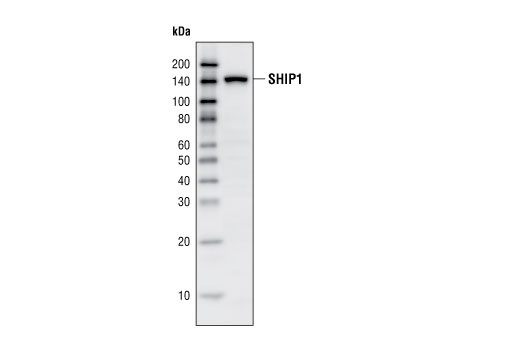 Polyclonal Antibody Western Blotting Inositol-Polyphosphate 5-phosphatase Activity