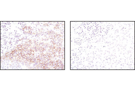 Immunohistochemical analysis of paraffin-embedded human breast carcinoma using HER2/ErbB2 (29D8) RmAb in the presence of control peptide (left) or HER2/ErbB2 Blocking Peptide #1059 (right).