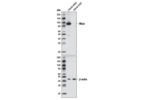 Western blot analysis of extracts from mouse testis and mouse brain using Miwi (D92B7) XP<sup>® </sup>Rabbit mAb (upper) or β-Actin (13E5) Rabbit mAb #4970 (lower).