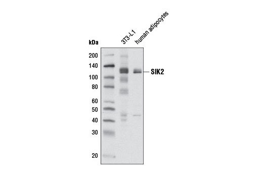 Western blot analysis of extracts from 3T3-L1 cells and human adipocytes using SIK2 (D28G3) Rabbit mAb.