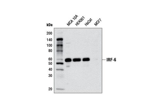 Polyclonal Antibody - IRF-6 Antibody - Immunoprecipitation, Western Blotting, UniProt ID O14896, Entrez ID 3664 #6948, Irf-6