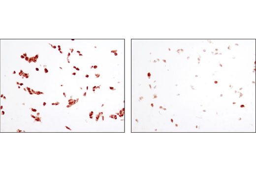 Immunohistochemical analysis of paraffin-embedded OVCAR8 cell pellets treated with Human Tumor Necrosis Factor-α (hTNF-α) #8902 (left) or treated with SignalSilence<sup>®</sup> NF-κB p65 siRNA I #6261 (right), using NF-κB p65 (L8F6) Mouse mAb.