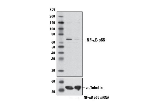 Western blot analysis of extracts from HeLa cells, transfected with 100 nM SignalSilence<sup>®</sup> Control siRNA (Unconjugated) #6568 (-) or SignalSilence<sup>®</sup> NF-κB p65 siRNA I #6261 (+), using NF-κB p65 (L8F6) Mouse mAb (upper) or α-Tubulin (11Η10) Rabbit mAb #2125 (lower). The NF-κB p65 (L8F6) Mouse mAb confirms silencing of NF-κB p65 expression, while the α-Tubulin (11Η10) Rabbit mAb is used as a loading control.