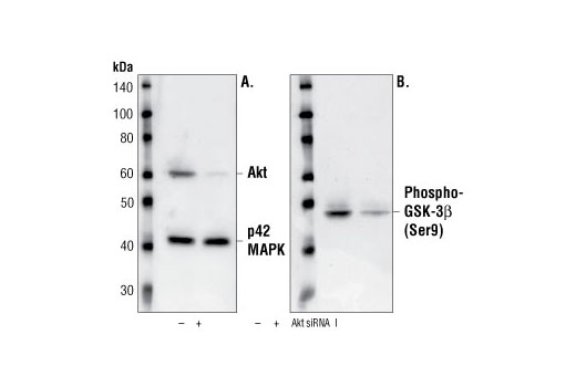 Western blot analysis of extracts from CHO cells, transfected with non-targeted (-) or SignalSilence<sup>®</sup> Akt siRNA I (+) siRNA, using Akt Antibody #9272 and p42 MAP Kinase (Erk2) Antibody #9108. The Akt antibody confirms silencing of protein expression while the p42 MAP Kinase (Erk2) antibody was used to control for loading and specificity of Akt siRNA (A). Phospho-GSK-3β (Ser9) Antibody #9336 was used to confirm downstream pathway inhibition (B).