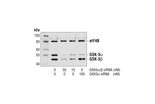 Western blot analysis of extracts from HeLa cells, untransfected or transfected with either GSK-3alpha/beta siRNA or GSK-3alpha siRNA. GSK-3alpha and GSK-3beta were detected using a GSK-3alpha/beta antibody, and eIF4B was detected using eIF4B Antibody #3592. The GSK-3alpha/beta antibody confirms silencing of GSK-3alpha and beta expression, and the eIF4B Antibody is used to control for loading and siRNA specificity.