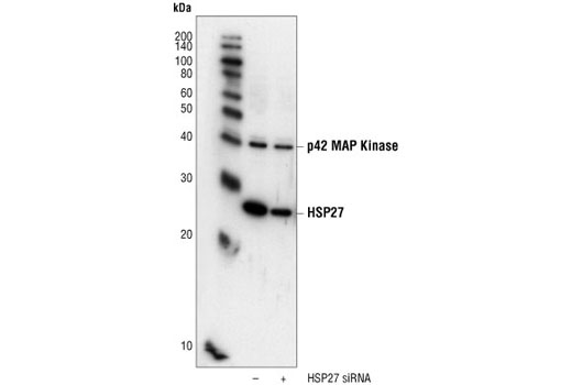 SignalSilence® HSP27 siRNA I - Transfection, UniProt ID P04792, Entrez ID 3315 #6356 - #6356