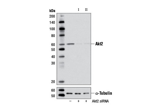 Western blot analysis of extracts from NIH/3T3 cells, transfected with 100 nM SignalSilence<sup>®</sup> Control siRNA (Unconjugated) #6568 (-), SignalSilence<sup>®</sup> Akt2 siRNA I (Mouse Specific) (+), or SignalSilence<sup>®</sup> Akt2 siRNA II (Mouse Specific) #6408 (+) using Akt2 (D6G4) Rabbit mAb #3063 (upper) or α-Tubulin (11H10) Rabbit mAb #2125 (lower). The Akt2 (D6G4) Rabbit mAb confirms silencing of Akt2 expression, while the α-Tubulin (11H10) Rabbit mAb is used as a loading control.