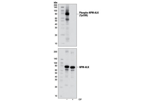 Western blot analysis of extracts from SUP-M2 cells, untreated or treated with calf intestinal phosphatase (CIP), using Phospho-ALK (Tyr1278) (D59G10) Rabbit mAb (upper) and ALK (C26G7) Rabbit mAb #3333 (lower).