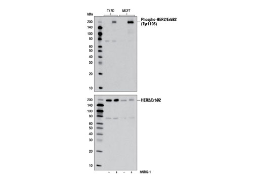 Western blot analysis of extracts from T47D and MCF7 cells, untreated or treated with human neuregulin-1 #5218 (100 ng/ml, 5 min), using Phospho-HER2/ErbB2 (Tyr1196) (D66B7) Rabbit mAb (upper) and HER2/ErbB2 (29D8) Rabbit mAb #2165 (lower).
