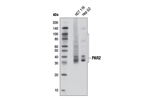 Western blot analysis of extracts from HCT 116 and Hep G2 cells using PAR2 (D61D5) Rabbit mAb.