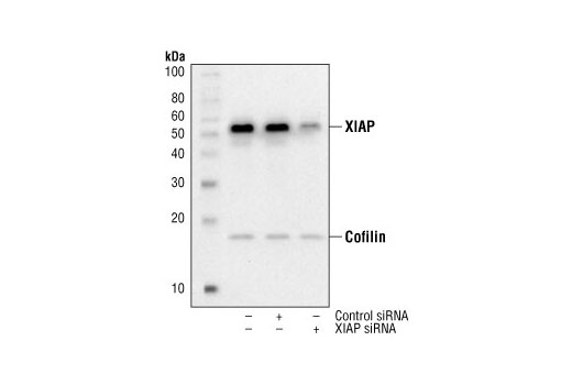 SignalSilence® XIAP siRNA I - Transfection, UniProt ID P98170, Entrez ID 331 #6446, Apoptosis