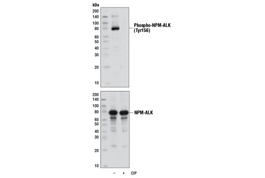 Western blot analysis of extracts from SUP-M2 cells, untreated or treated with calf intestinal phosphatase (CIP), using Phospho-ALK (Tyr1096) (D96H10) Rabbit mAb (upper) and ALK (C26G7) Rabbit mAb #3333 (lower).