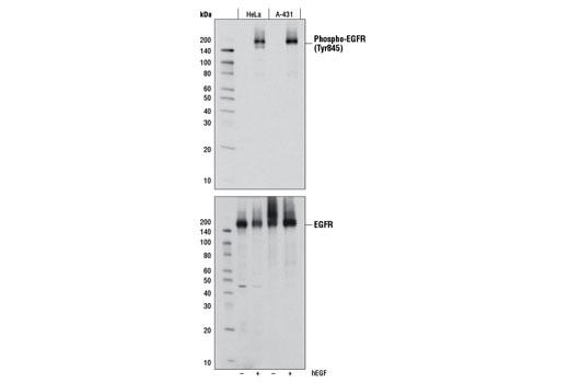 Monoclonal Antibody - Phospho-EGF Receptor (Tyr845) (D63B4) Rabbit mAb, UniProt ID P00533, Entrez ID 1956 #6963, Antibodies to Kinases