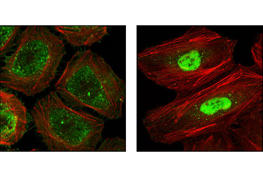 Confocal immunofluorescent analysis of HeLa cells, untreated (left) or heat-treated (right), using HSP40 Antibody (green). Actin filaments have been labeled with Alexa Fluor® 555 phalloidin (red).