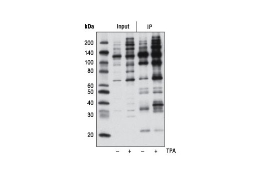 Image 5: Phospho-(Ser/Thr) Kinase Substrate Antibody Sampler Kit