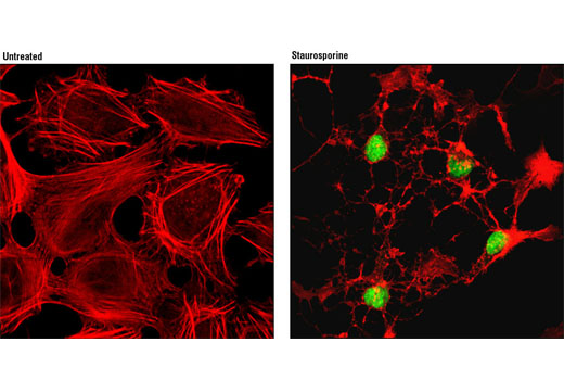 Confocal immunofluorescent analysis of HeLa cells, untreated (left) or treated with staurosporine #9953 (1 μM for 3 hours, right), using Cleaved PARP (Asp214) (D64E10) XP<sup>®</sup> Rabbit mAb (Alexa Fluor<sup>®</sup> 488 Conjugate) (green). Actin filaments were labeled with DY-554 phalloidin (red).