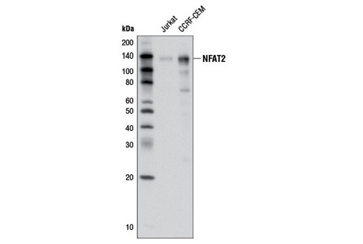 Western blot analysis of extracts from Jurkat and CCRF-CEM cells using NFAT2 (D15F1) Rabbit mAb.