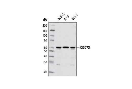 Western blot analysis of extracts from various cell lines using CDC73 (D38E12) Rabbit mAb.