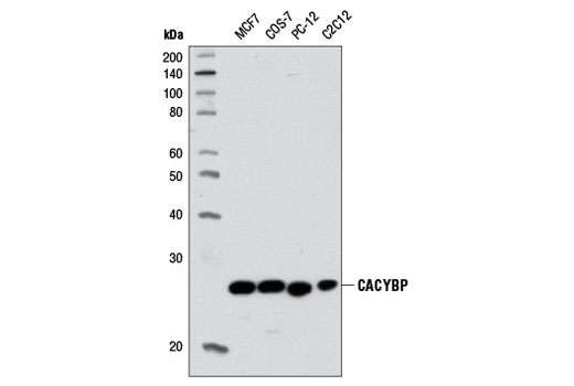Western blot analysis of extracts from various cell lines using CACYBP (D43G11) Rabbit mAb.
