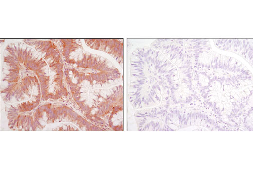 Immunohistochemical analysis of paraffin-embedded colon carcinoma using CACYBP (D43G11) Rabbit mAb in the presence of control peptide (left) or antigen-specific peptide (right).