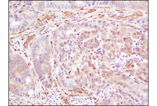 Immunohistochemical analysis of paraffin-embedded human colon carcinoma using YAP/TAZ (D24E4) Rabbit mAb.