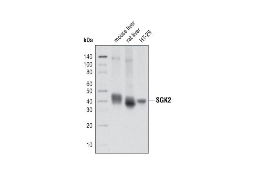 Western blot analysis of extracts from HT-29 cells, mouse liver, and rat liver using SGK2 (D7G1) Rabbit mAb.