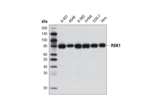 Western blot analysis of extracts from various cell lines using RSK1 (D6D5) Rabbit mAb.