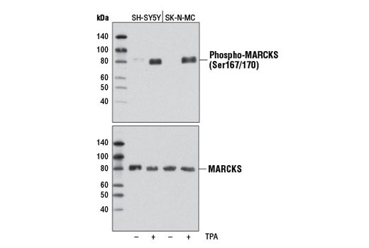 Western blot analysis of extracts from serum-starved SH-SY5Y and SK-N-MC cells, untreated (-) or treated with TPA #4174 (200 nM, 15 min; +), using Phospho-MARCKS (Ser167/170) (D13E4) XP<sup>®</sup> Rabbit mAb (upper) and MARCKS (D88D11) XP<sup>®</sup> Rabbit mAb #5607 (lower).
