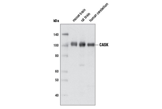 Western blot analysis of extracts from various tissues using CASK (D24B12) Rabbit mAb.