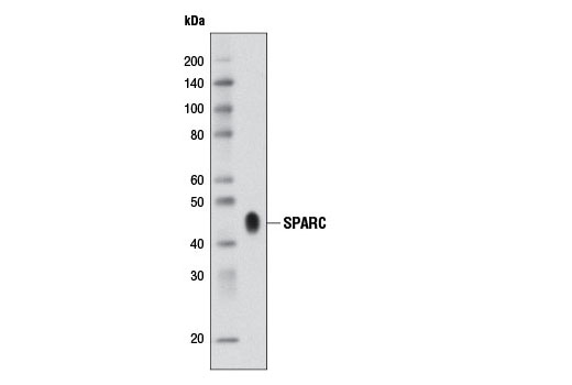 Western blot analysis of culture medium, from SPARC-secreting PYS-2 cells, using SPARC (D10F10) Rabbit mAb.