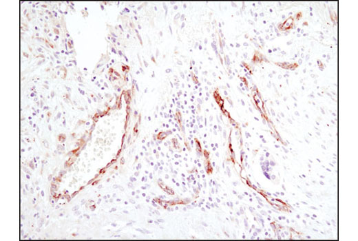 Immunohistochemical analysis of paraffin-embedded human lung carcinoma using SPARC (D10F10) Rabbit mAb.