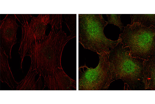 Confocal immunofluorescent analysis of NIH/3T3 cells either U0126-treated (left) or PDGF-treated (right) and labeled with Phospho-p44/42 MAPK (Erk1/2) (Thr202/Tyr204) Antibody (green). Actin filaments have been labeled with Alexa Fluor® 555 phalloidin #8953 (red).